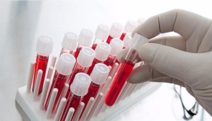 Koronavirus bu qan qrupunu yox etmək üçün yaradılıb - ŞOK İDDİA
