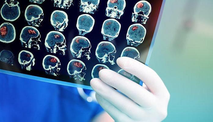Ученые назвали одну из главных причин развития слабоумия