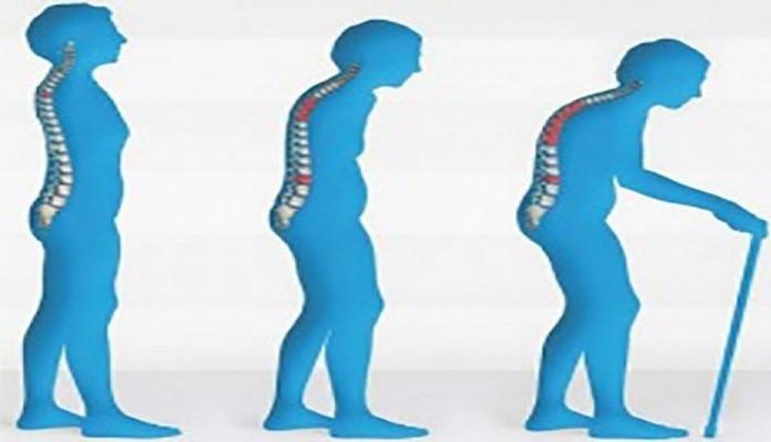 Своевременная профилактика остеопороза способна предотвратить развитие болезни