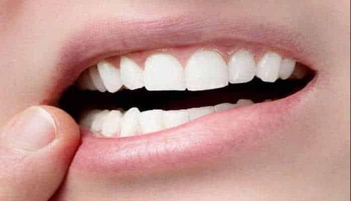 Dişləri necə sağlam saxlayaq?