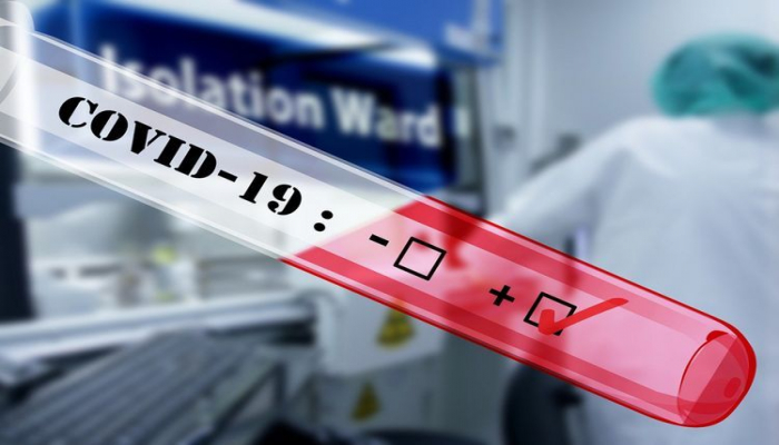Azərbaycanda ümumilikdə 917027 koronavirus testi aparılıb