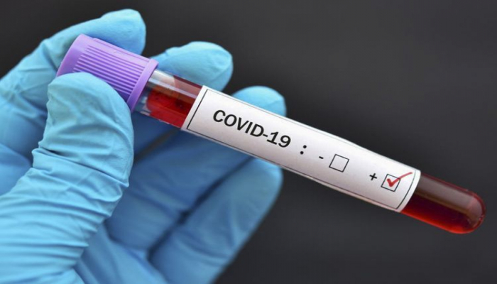 В Азербайджане до сегодняшнего дня проведено 1095543 теста на коронавирус