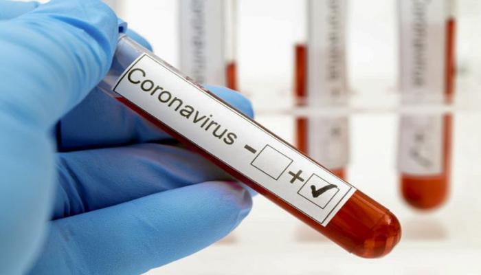 В Азербайджане выявлено еще 110 случаев заражения коронавирусом, 127 человек вылечились, 1 скончался
