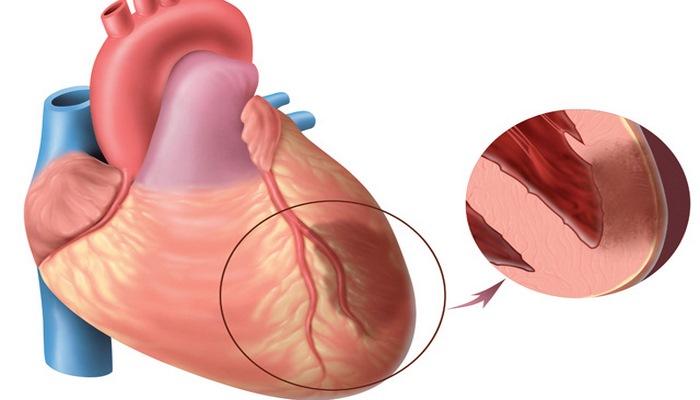 İnfarktın simptomları və ilk yardım. Bu bilgilər sizin və yaxınlarınızın həyatını qurtara bilər!
