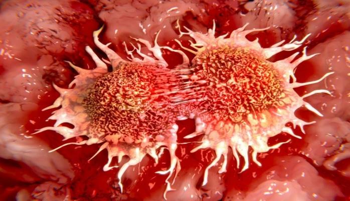 Названа одна из главных причин возникновения рака