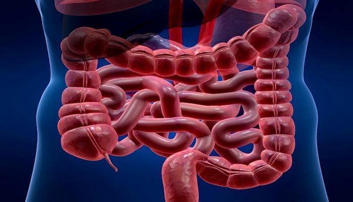 Медики развенчали популярные мифы о раке кишечника