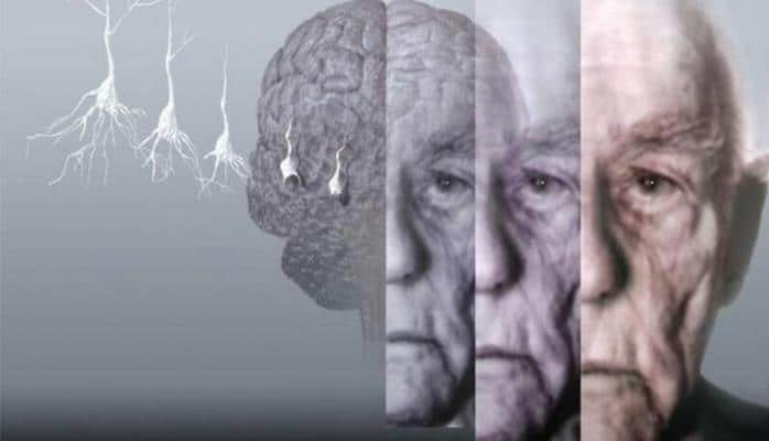 Ağır beyin xəstəliyi riskiniz nə qədərdir? - Testlə yoxlayın