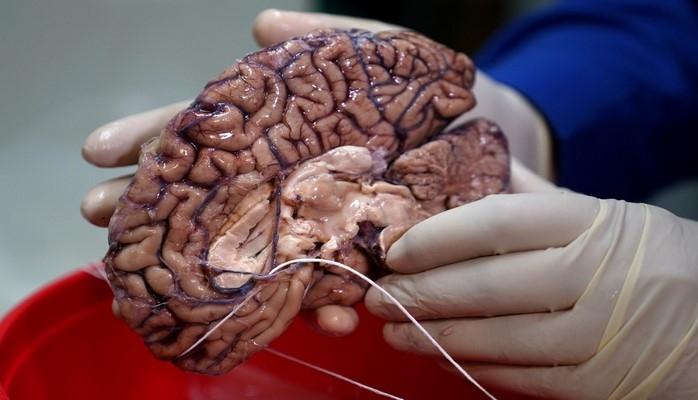 İnsanın böyük beynində genlər araşdırılır