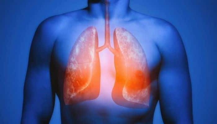 Ученые: Легкие курильщика восстанавливаются, если бросить курить