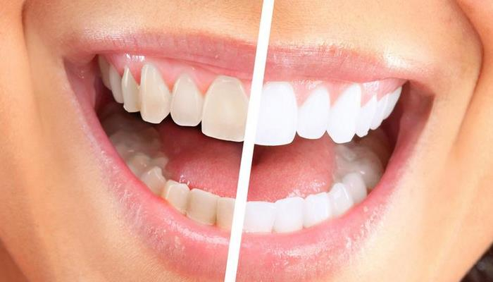 İdeal dişlərə sahib olmağın ən ucuz vasitəsi