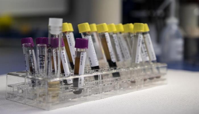 Ученые научились определять синдром хронической усталости по анализу крови