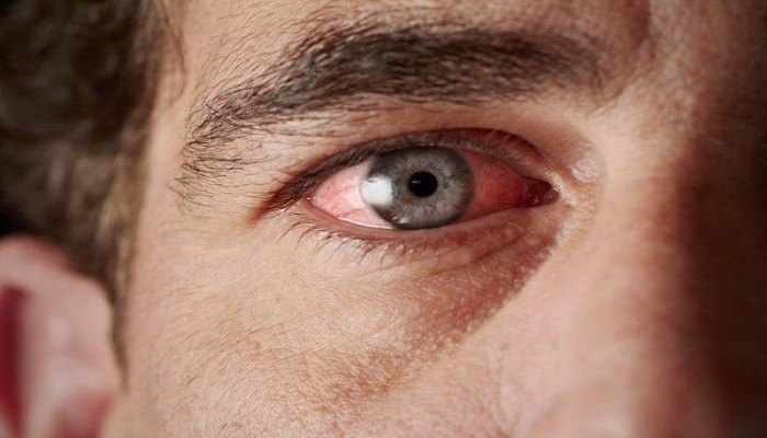 Göz zədələnməsinə səbəb olan allergik xəstəliklərin səbəbi açıqlandı