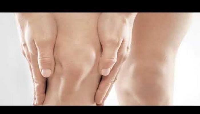 9 медицинских причин, почему у вас могут опухать колени