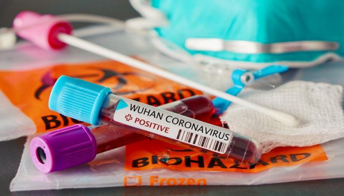 В Азербайджане 141 новый случайзаражения коронавирусом