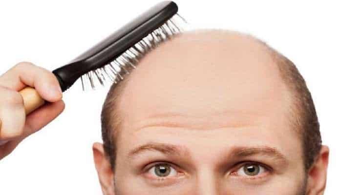 Saçlarımız niyə tökülür? – Çox işləyənlər daha erkən keçəl olur
