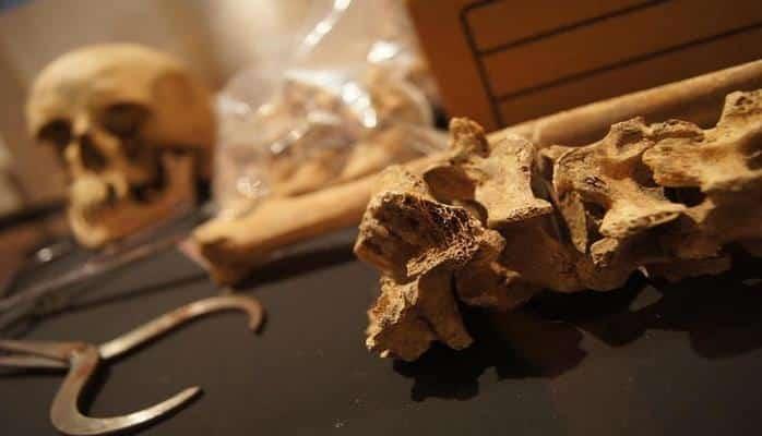 Ученые нашли следы генетического заболевания в скелетах британцев Средневековья