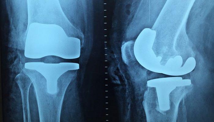 Ортопеды назвали эффективные способы борьбы с плоскостопием