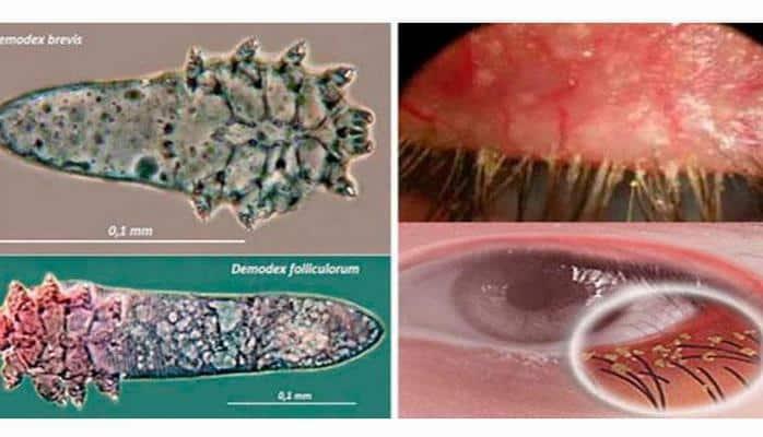 Kirpik gənəsi xəstəliyi nədir?