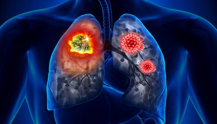 Найдены лекарства против особо опасного рака легких