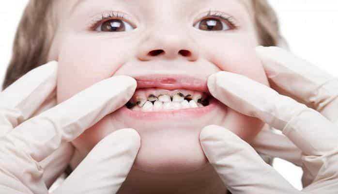 Uşaqlarda ən çox rast gəlinən stomatoloji xəstəliklər