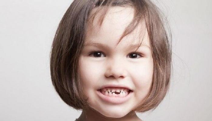 Plastik butulkalar uşaqların dişlərinin məhvinə səbəb olur