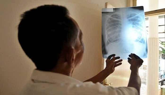 Тучные люди рискуют заболеть раком из-зарентгена