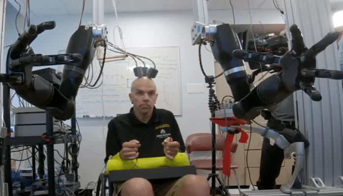 Ученые создали управляемый «силой мысли» протез обеих рук