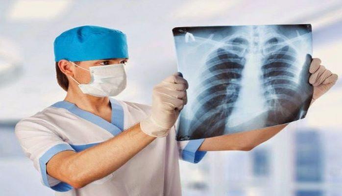Названы симптомы рака легких