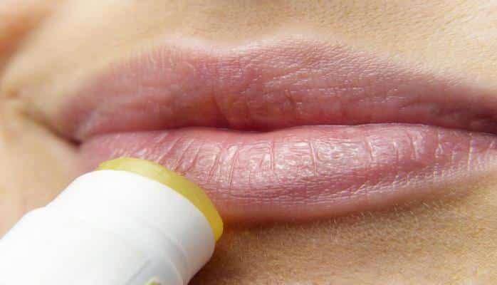 Ученые: Трещины на губах указывают на избыток витамина А в организме