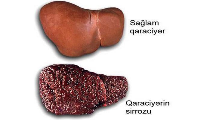 Qaraciyər serozu