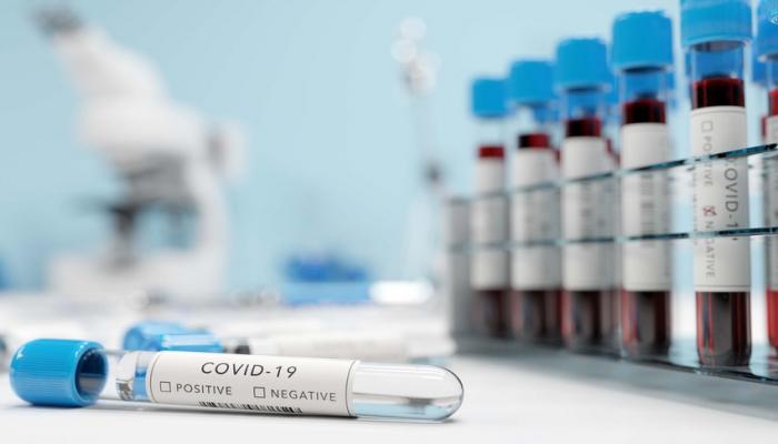 Koronavirusa qarşı immunitet 1 ay sonra təsirini itirir