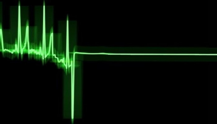 Что после остановки сердца происходит с организмом?