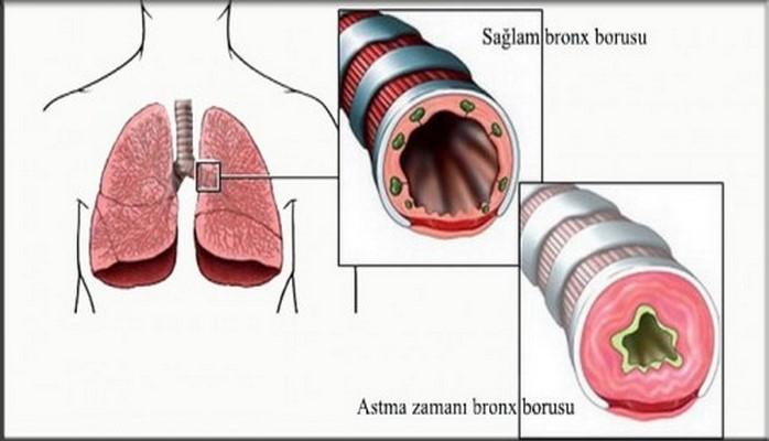 Ağciyər iltihabı