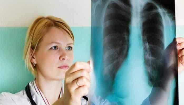 Ağciyər xərçəngindən ölüm halları arta bilər