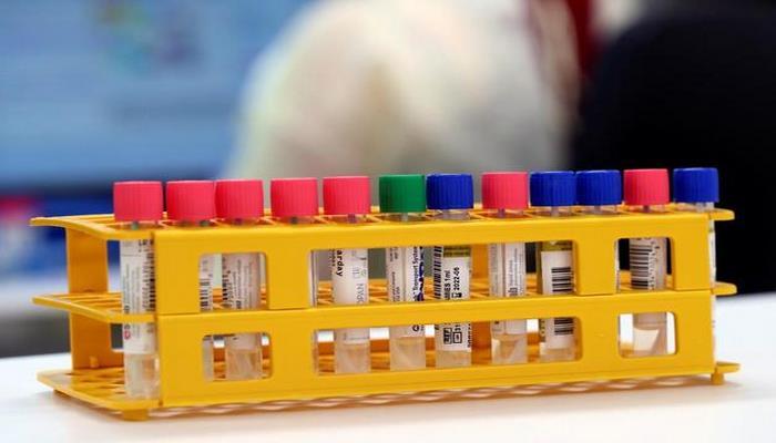 Koronavirüs araştırması sonuçlandı! Yüzde 41 'nedeni Çinlilerin beslenme şekli' dedi