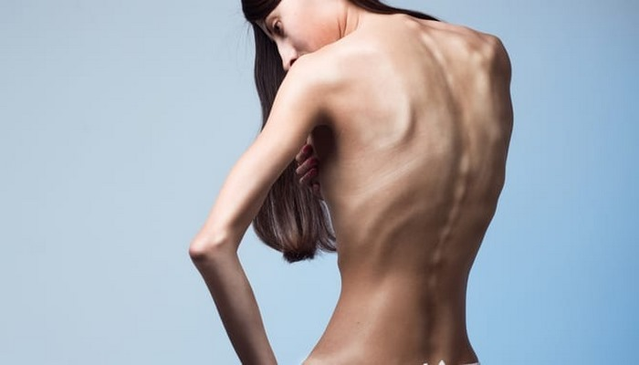 Anoreksiya Nevroza Sendromu