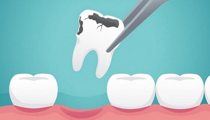 'Aşırı soda diş minesini aşındırabilir'