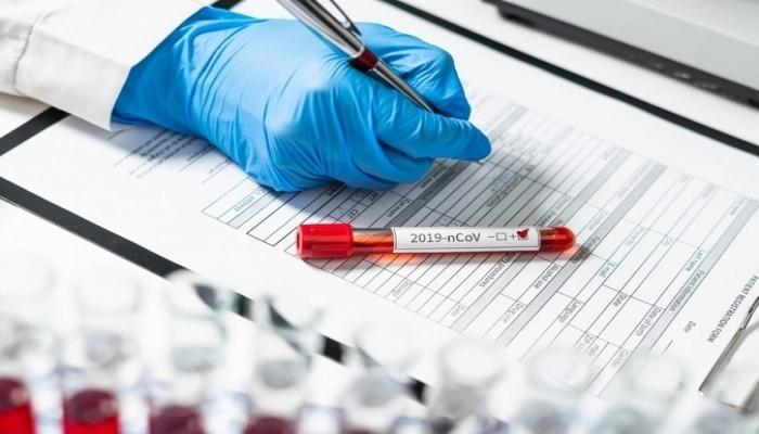 Avropa ölkələri yüz milyonlarla doza koronavirus vaksini alacaq