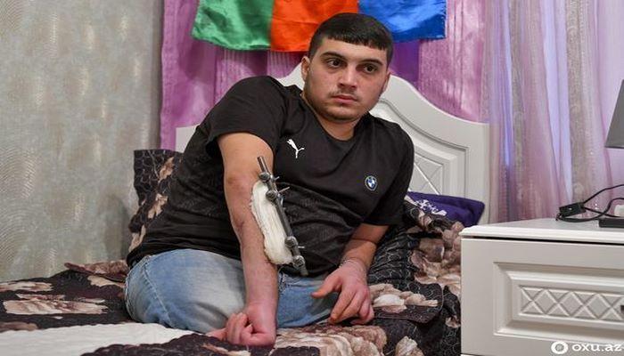 Ayaqlarını itirən 20 yaşlı Qarabağ qazisi üçün protez hazırlıqlarına başlanıldı - RƏSMİ