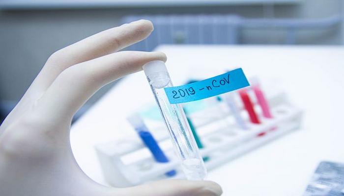 Azərbaycanda daha 2406 nəfər koronavirusa yoluxub, 37 nəfər ölüb