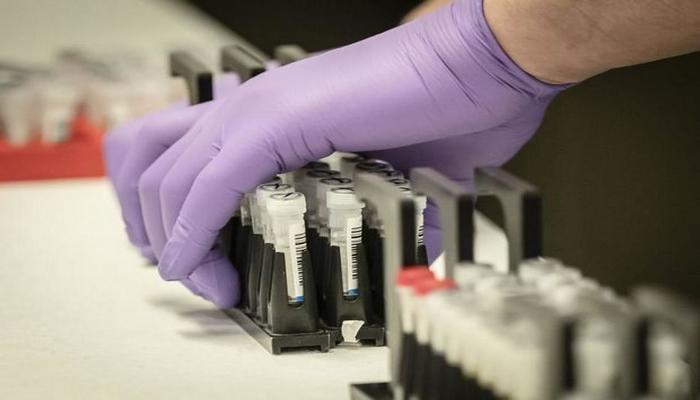 Azərbaycanda daha üç nəfər koronavirusdan öldü: 91 yeni yoluxma