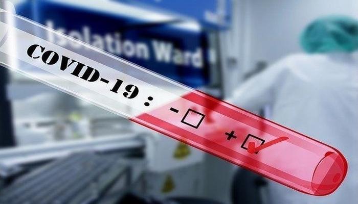 Azərbaycanda indiyədək 676 252 koronavirus testi aparılıb