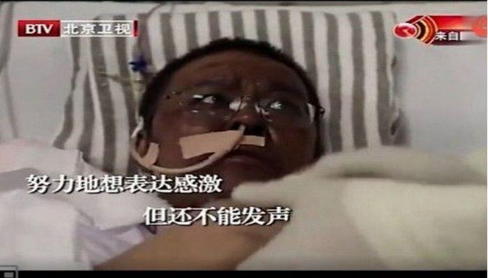 Умер 42-летний китайский врач, чья кожа почернела из-за коронавируса