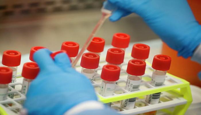 Bakıda koronavirusa yoluxma səviyyəsi artdı - STATİSTİKA