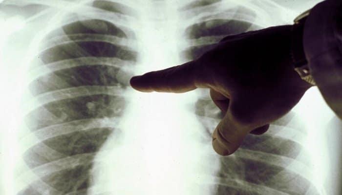 Онкологи назвали пять самых ранних признаков злокачественной опухоли