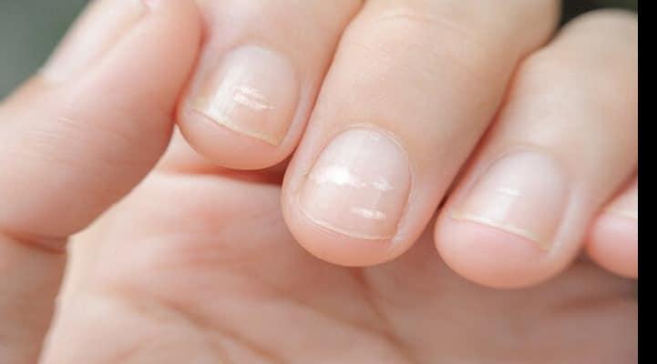 Пятна на ногтях могут быть предвестниками страшной болезни