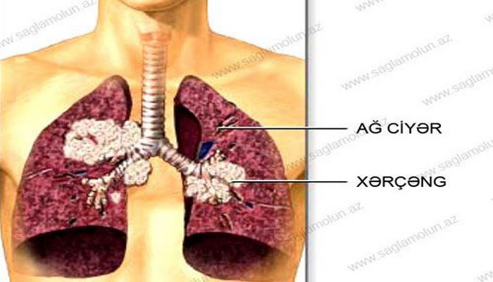 Ağciyər xərçəngi