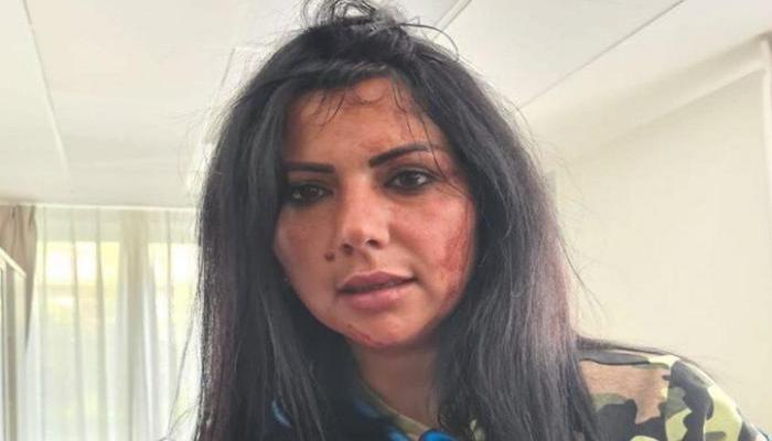 Belçikadakı aksiyada yaralanan REAL TV-nin əməkdaşı erməni vəhşiliyindən DANIŞDI