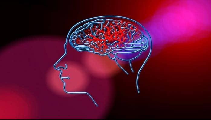 Ученые: Появление мигрени увеличивает риск инсульта