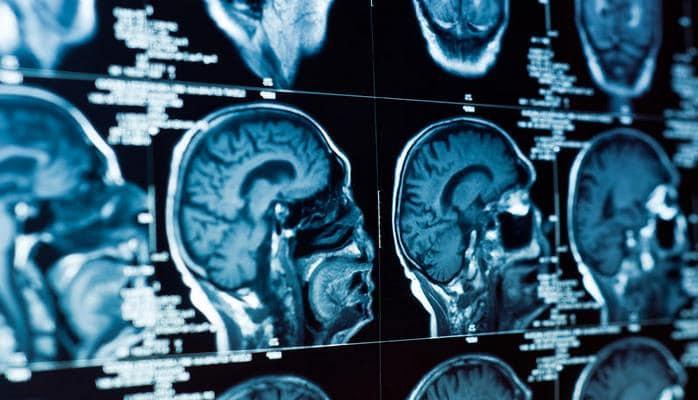 В Японии ученые оживили мертвый мозг - прорыв в науке